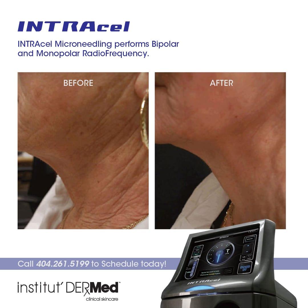 institutdermed intracel machine