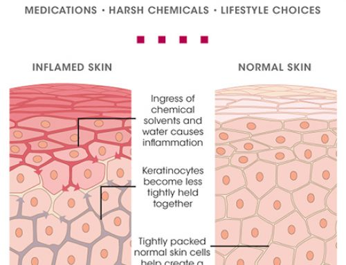 Understanding Rosacea and Sensitive Skin