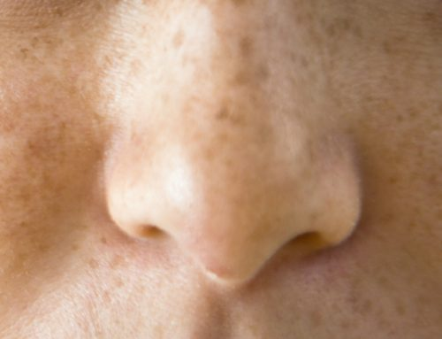 Treating Photo-Aging with Micro-needling and Peels