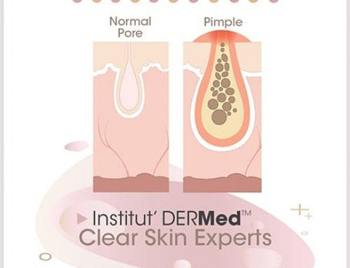 Oily Acne Skin Disorders Explained