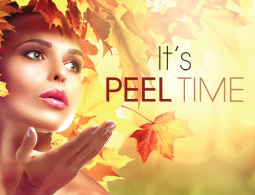 This is the Season for Peels